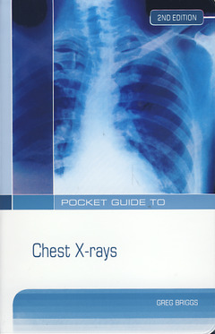 Cover of the book Pocket guide to chest X-rays