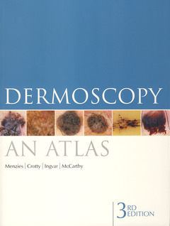 Couverture de l'ouvrage Dermoscopy: an atlas