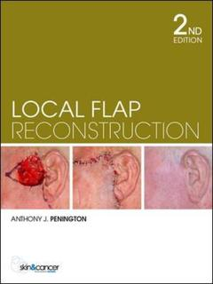 Cover of the book Local flap reconstruction (2nd Ed.)