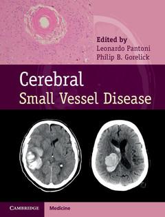 Couverture de l'ouvrage Cerebral Small Vessel Disease