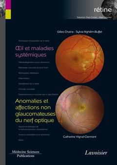 Couverture de l'ouvrage Œil et maladies systémiques / Anomalies et affections non glaucomateuses du nerf optique
