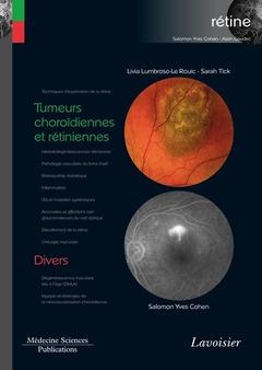 Couverture de l'ouvrage Tumeurs choroïdiennes et rétiniennes / Divers