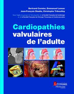 Couverture de l'ouvrage Cardiopathies valvulaires de l'adulte