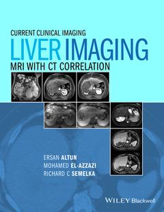 Couverture de l'ouvrage Liver Imaging