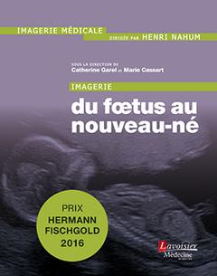 Couverture de l'ouvrage Imagerie : du fœtus au nouveau-né