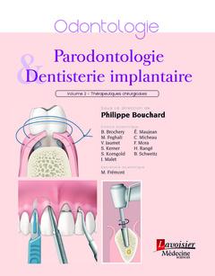 Couverture de l'ouvrage Parodontologie & dentisterie implantaire - Volume 2 : Thérapeutiques chirurgicales