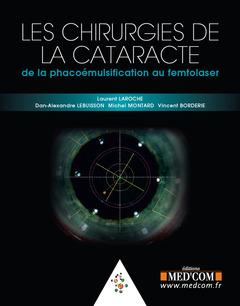 Couverture de l'ouvrage Les chirurgies de la cataracte