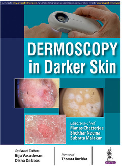 Cover of the book Dermoscopy in Darker Skin
