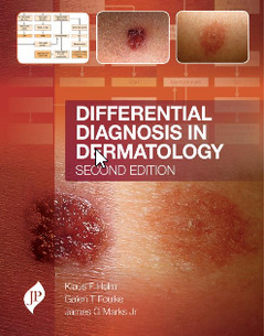 Cover of the book Differential Diagnosis in Dermatology (2nd Ed.)
