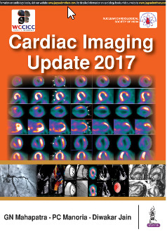 Cover of the book Cardiac Imaging Update 2017