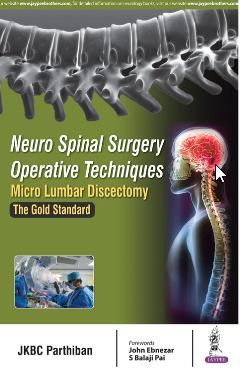 Couverture de l'ouvrage Neuro Spinal Surgery Operative  Techniques: Micro Lumbar  Discectomy