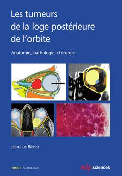 Couverture de l'ouvrage Les tumeurs de la loge postérieure de l'orbite