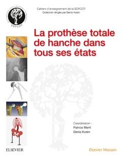 Couverture de l'ouvrage La prothèse totale de hanche dans tous ses états