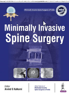 Cover of the book Minimally Invasive Spine Surgery