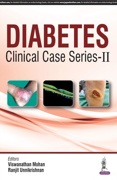 Cover of the book Diabetes