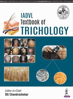 Cover of the book IADVL Textbook of Trichology