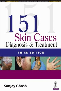 Cover of the book 151 Skin Cases