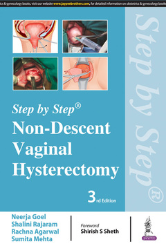 Couverture de l'ouvrage Non-Descent Vaginal Hysterectomy