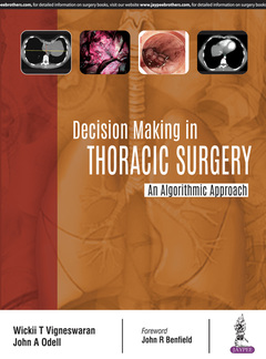 Couverture de l'ouvrage Decision Making in Thoracic Surgery