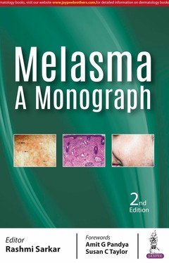 Cover of the book Melasma: A Monograph