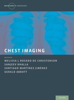 Couverture de l'ouvrage Chest Imaging