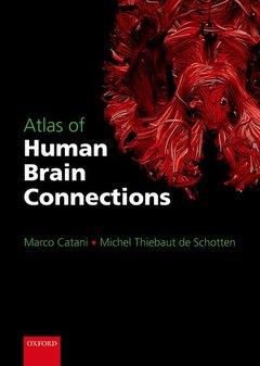 Couverture de l'ouvrage Atlas of human brain connections