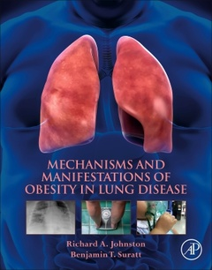 Couverture de l'ouvrage Mechanisms and Manifestations of Obesity in Lung Disease