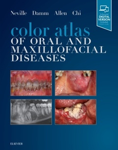 Cover of the book Color Atlas of Oral and Maxillofacial Diseases