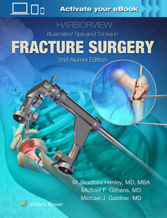 Couverture de l'ouvrage Harborview Illustrated Tips and Tricks in Fracture Surgery