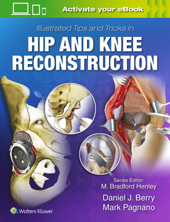 Couverture de l'ouvrage Illustrated Tips and Tricks in Hip and Knee Reconstructive and Replacement Surgery