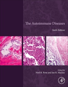 Couverture de l'ouvrage The Autoimmune Diseases