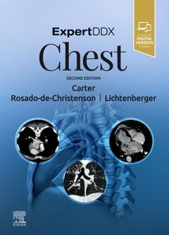 Couverture de l'ouvrage ExpertDDx: Chest
