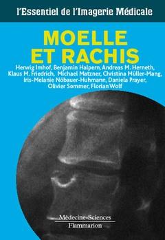 Couverture de l'ouvrage Moelle & rachis