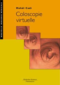 Couverture de l'ouvrage Coloscopie virtuelle