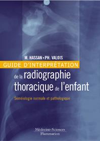 Couverture de l'ouvrage Guide d'interprétation de la radiographie thoracique de l'enfant : séméiologie normale et pathologique