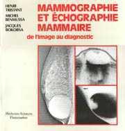 Couverture de l'ouvrage Mammographie et échographie mammaire. De l'image au diagnostic