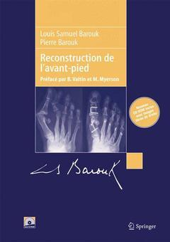 Couverture de l'ouvrage Reconstruction de l'avant-pied, (avec 2 CD-ROM)
