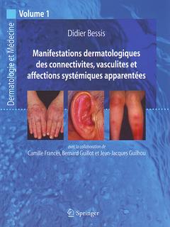 Couverture de l'ouvrage Manifestations dermatologiques des connectivites, vasculites et affections systématiques appararentées (Dermatologie et médecine, volume 1)