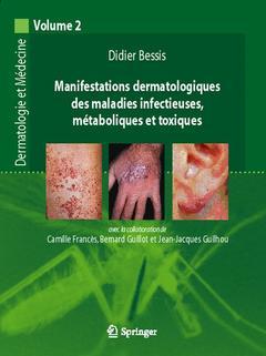 Couverture de l'ouvrage Manifestations dermatologiques des maladies infectieuses, métaboliques et toxiques (Dermatologie et médecine, volume 2)