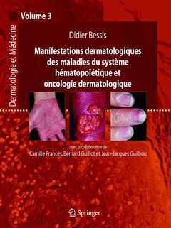 Couverture de l'ouvrage Manifestations dermatologiques des maladies du système hématopoïtiques et oncologie dermatologique