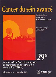 Couverture de l'ouvrage Cancer du sein avancé