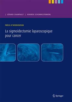 Couverture de l'ouvrage Précis d'intervention - La sigmoïdectomie laparoscopique pour cancer