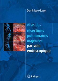 Couverture de l'ouvrage Atlas des résections pulmonaires majeures par voie endoscopique