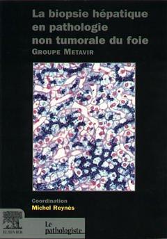 La biopsie hépatique en pathologie non tumorale du foie