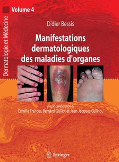 Couverture de l'ouvrage Manifestations dermatologiques des maladies d'organes