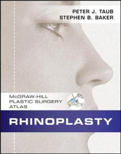 Couverture de l'ouvrage Rhinoplasty (with CD-ROM)