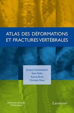 Couverture de l'ouvrage Atlas des déformations et fractures vertébrales