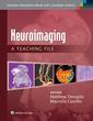 Couverture de l'ouvrage Neuroimaging