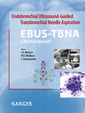 Couverture de l'ouvrage Endobronchial Ultrasound-Guided Transbronchial Needle Aspiration (EBUS-TBNA): A Practical Approach