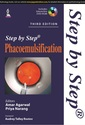 Couverture de l'ouvrage Step by Step Phacoemulsification (3rd Ed.)